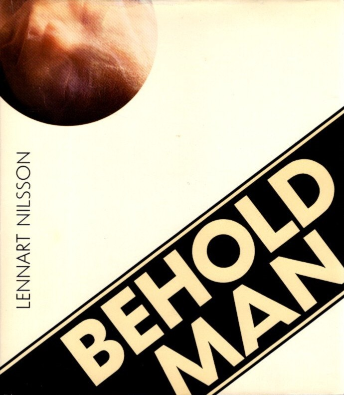 BEHOLD MAN: A Photographic Journey of Discovery inside the Body. Lennart Nilsson.